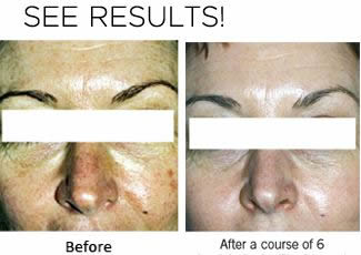 Exhale Body Rejuvenation - Chemical Peel Results